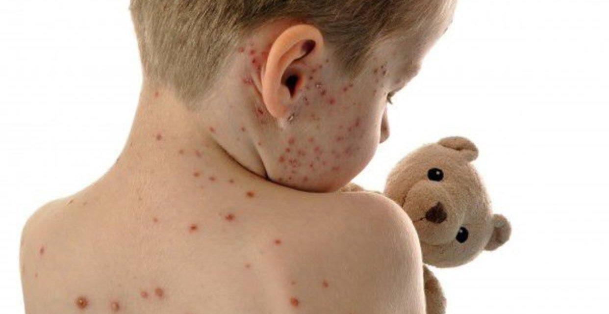 Epidemiólogos admiten que casi 103 casos sospechosos de sarampión carecen de vacunas