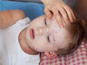 A Venezuela no llegan vacunas contra la varicela desde hace tres años