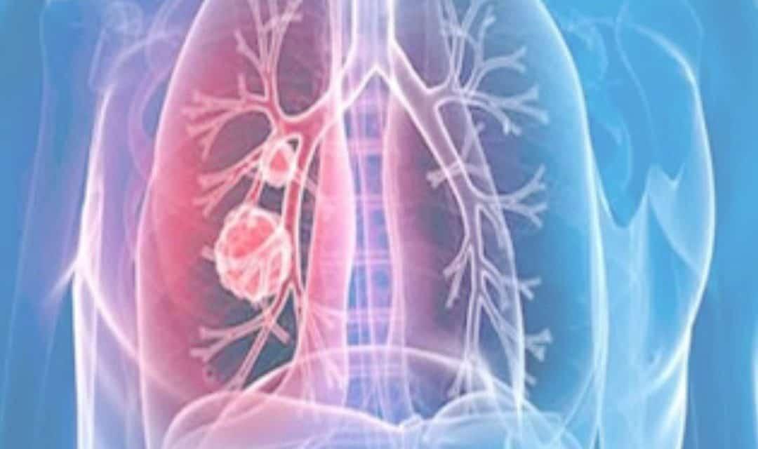 Aumenta vulnerabilidad de personas con Hipertensión Arterial Pulmonar en Venezuela ante escasez de fármacos