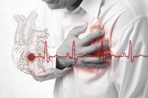 SociedadVenezolanade Cardiología alerta que es siete veces más probable morir de un infarto en un hospital
