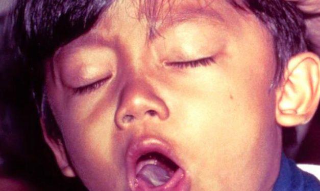 La difteria es una epidemia que se extiende