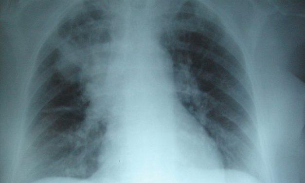 667 pacientes con fibrosis quística en Venezuela no tienen medicinas