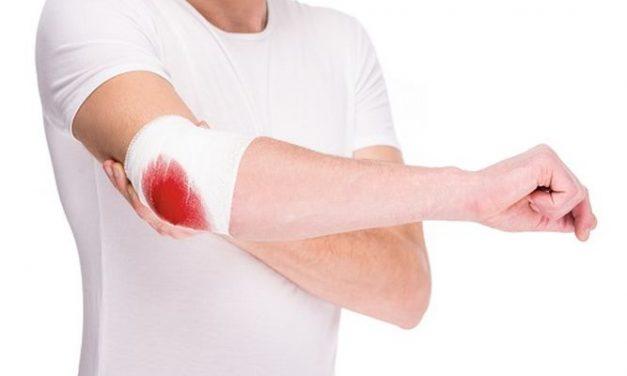 Personas con hemofilia están afectadas psicológicamente por la ausencia de tratamientos