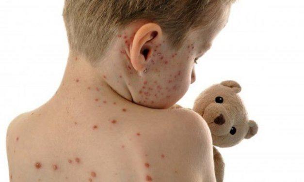 La OPS confirma 952 casos de sarampión en Venezuela